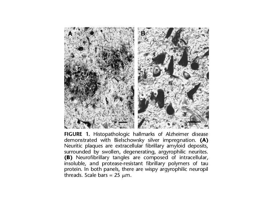 0 0.2 0.4 0.6 0.8 1 020406080100 Prevalence Neurofibrillary pathology Amyloid pathology From Braak H & E, 1997; Duyckaerts & Hauw, 1997 Age Entorhinal cortex Isocortex