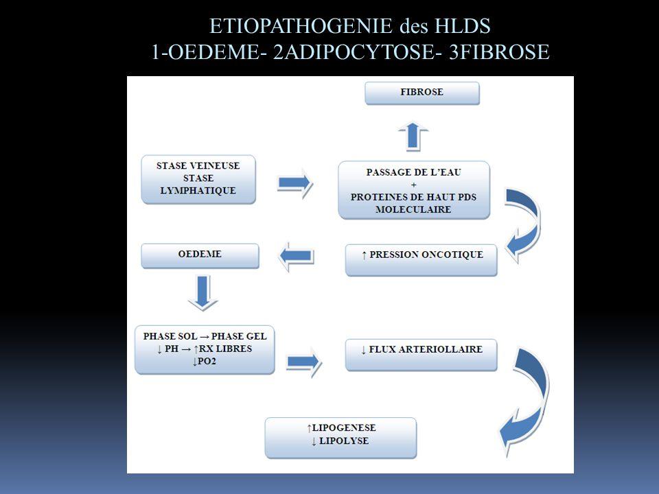 ETIOPATHOGENIE des HLDS 1-OEDEME- 2ADIPOCYTOSE- 3FIBROSE