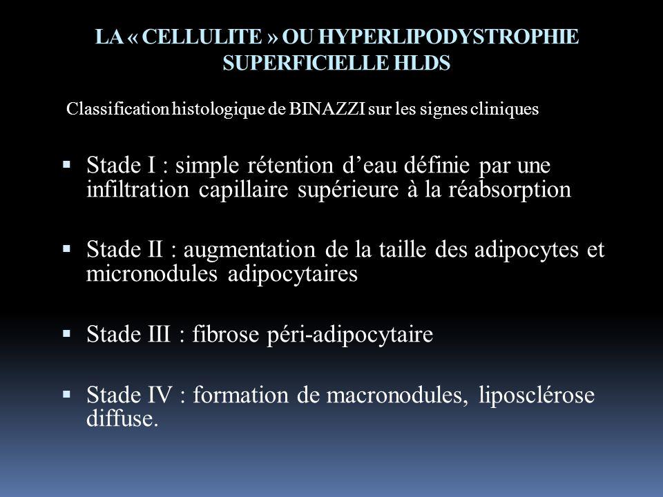LA « CELLULITE » OU HYPERLIPODYSTROPHIE SUPERFICIELLE HLDS Classification histologique de BINAZZI sur les signes cliniques Stade I : simple rétention