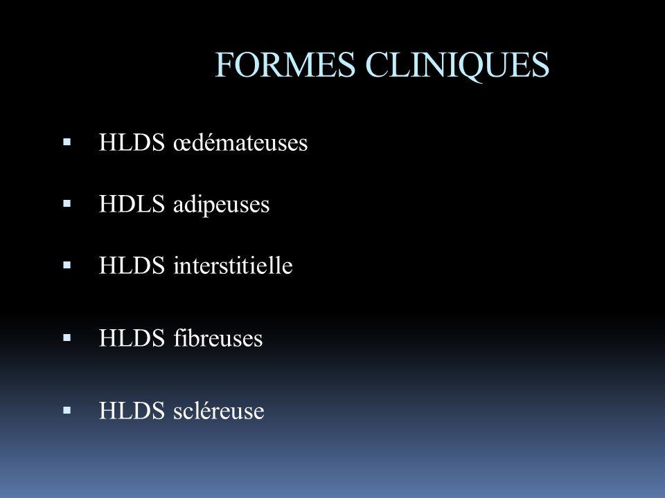FORMES CLINIQUES HLDS œdémateuses HDLS adipeuses HLDS interstitielle HLDS fibreuses HLDS scléreuse