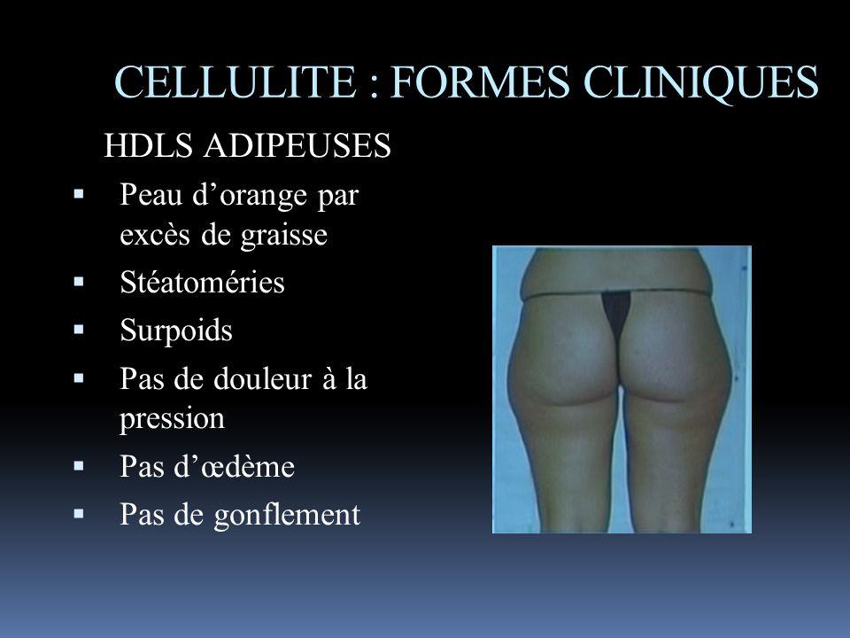 HDLS ADIPEUSES Peau dorange par excès de graisse Stéatoméries Surpoids Pas de douleur à la pression Pas dœdème Pas de gonflement CELLULITE : FORMES CL