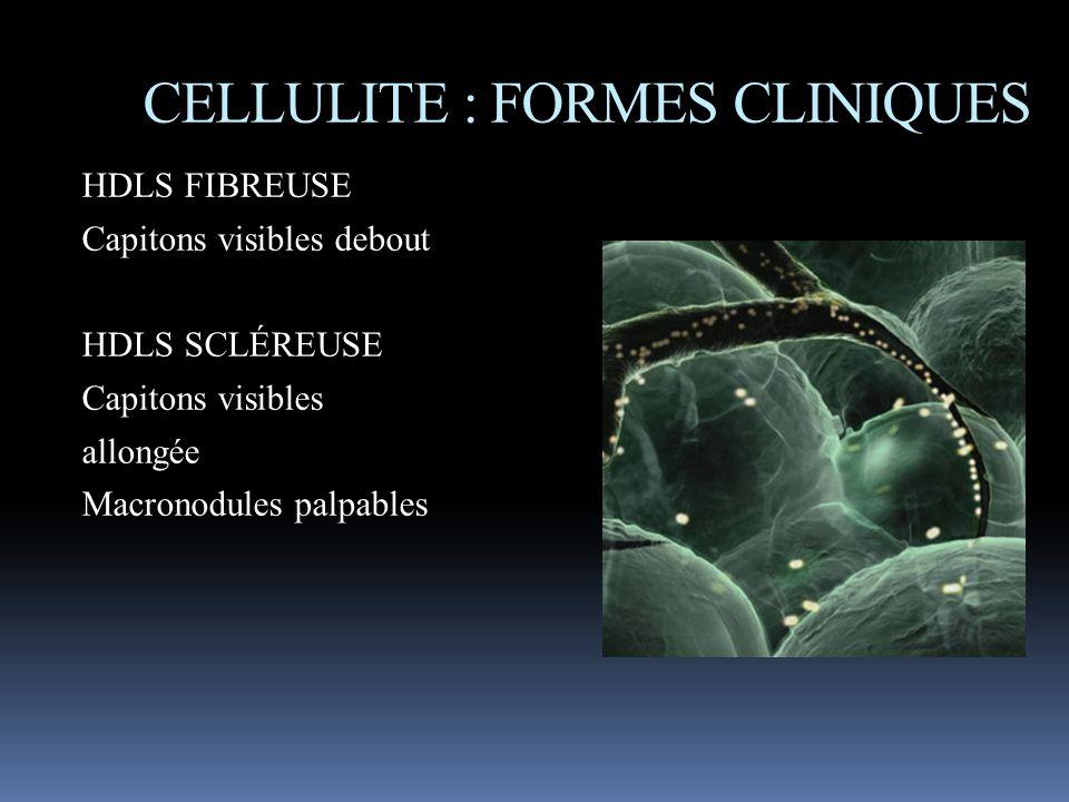 HDLS FIBREUSE Capitons visibles debout HDLS SCLÉREUSE Capitons visibles allongée Macronodules palpables CELLULITE : FORMES CLINIQUES