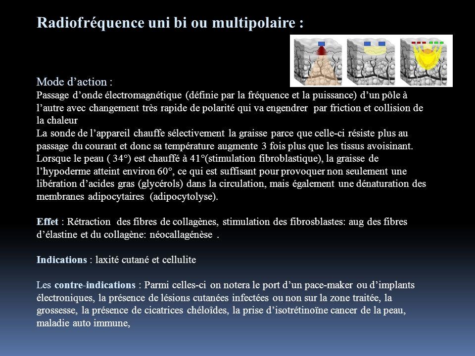 Radiofréquence uni bi ou multipolaire : Mode daction : Passage donde électromagnétique (définie par la fréquence et la puissance) dun pôle à lautre av
