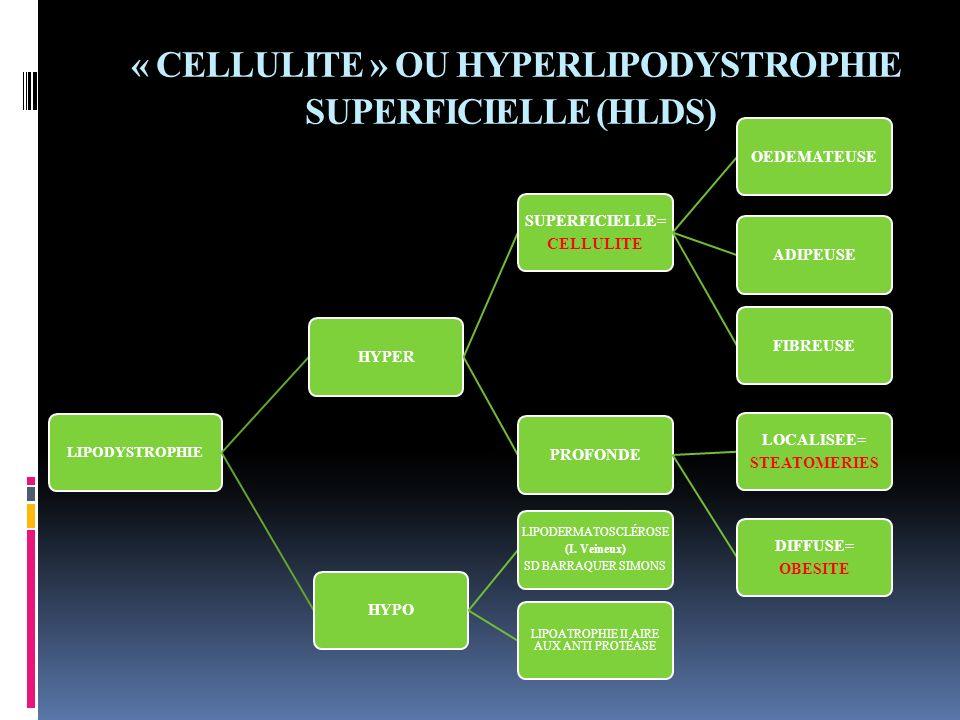 « CELLULITE » OU HYPERLIPODYSTROPHIE SUPERFICIELLE (HLDS) LIPODYSTROPHIE HYPER SUPERFICIELLE= CELLULITE OEDEMATEUSEADIPEUSEFIBREUSEPROFONDE LOCALISEE=
