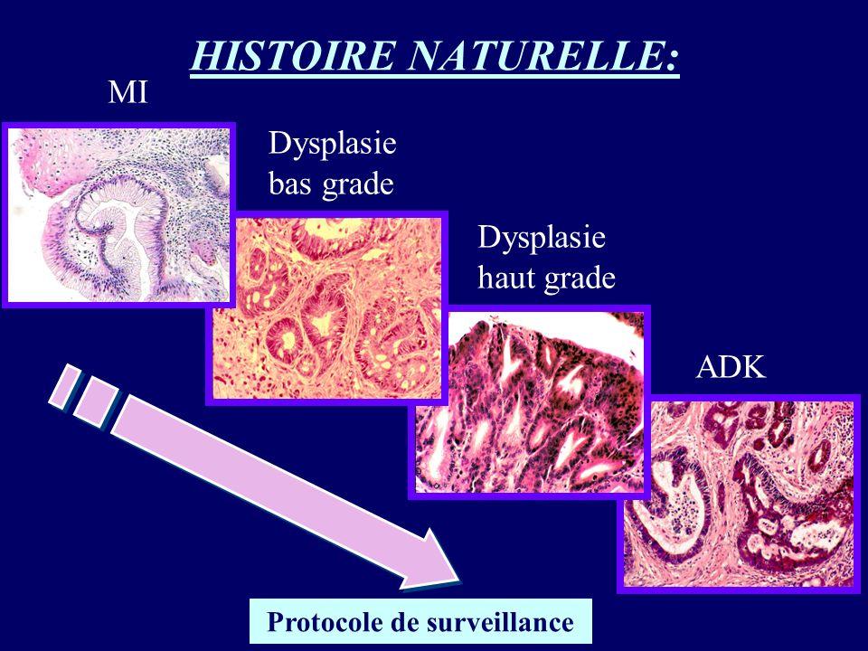 HISTOIRE NATURELLE: MI Dysplasie bas grade Dysplasie haut grade ADK Protocole de surveillance