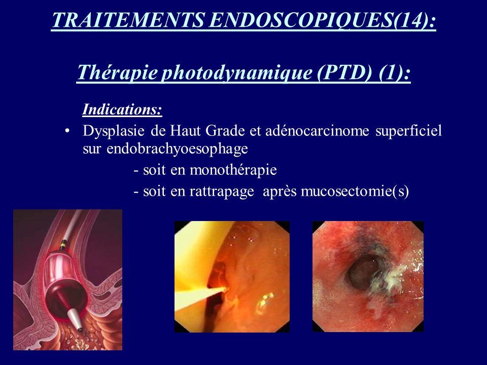 TRAITEMENTS ENDOSCOPIQUES(14): Thérapie photodynamique (PTD) (1): Indications: Dysplasie de Haut Grade et adénocarcinome superficiel sur endobrachyoes