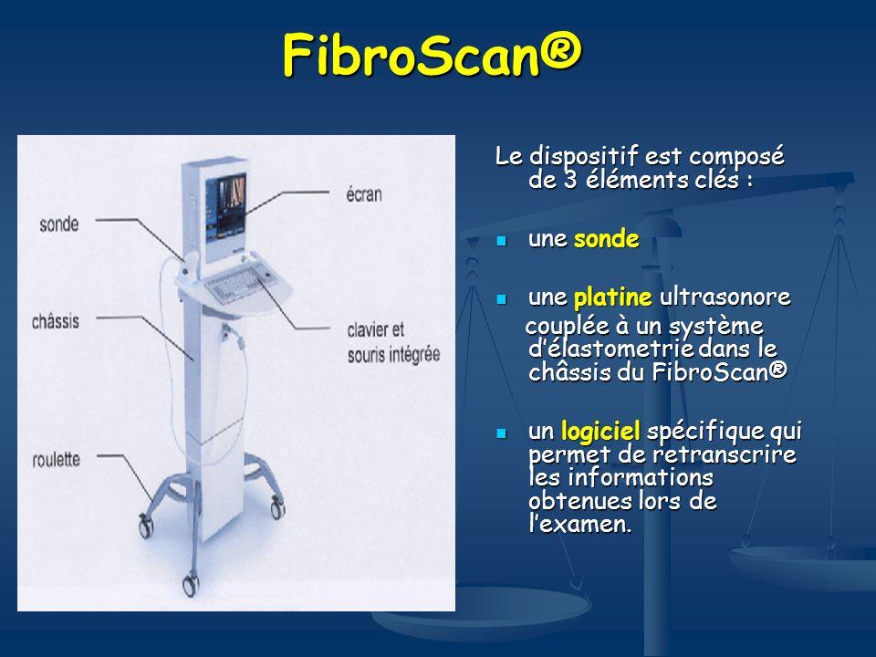 FibroScan® Le dispositif est composé de 3 éléments clés : une sonde une sonde une platine ultrasonore une platine ultrasonore couplée à un système dél