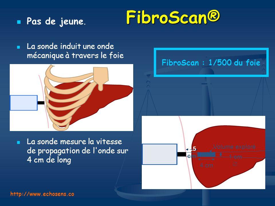 FibroScan® FibroScan® Pas de jeune. La sonde induit une onde mécanique à travers le foie La sonde mesure la vitesse de propagation de l'onde sur 4 cm