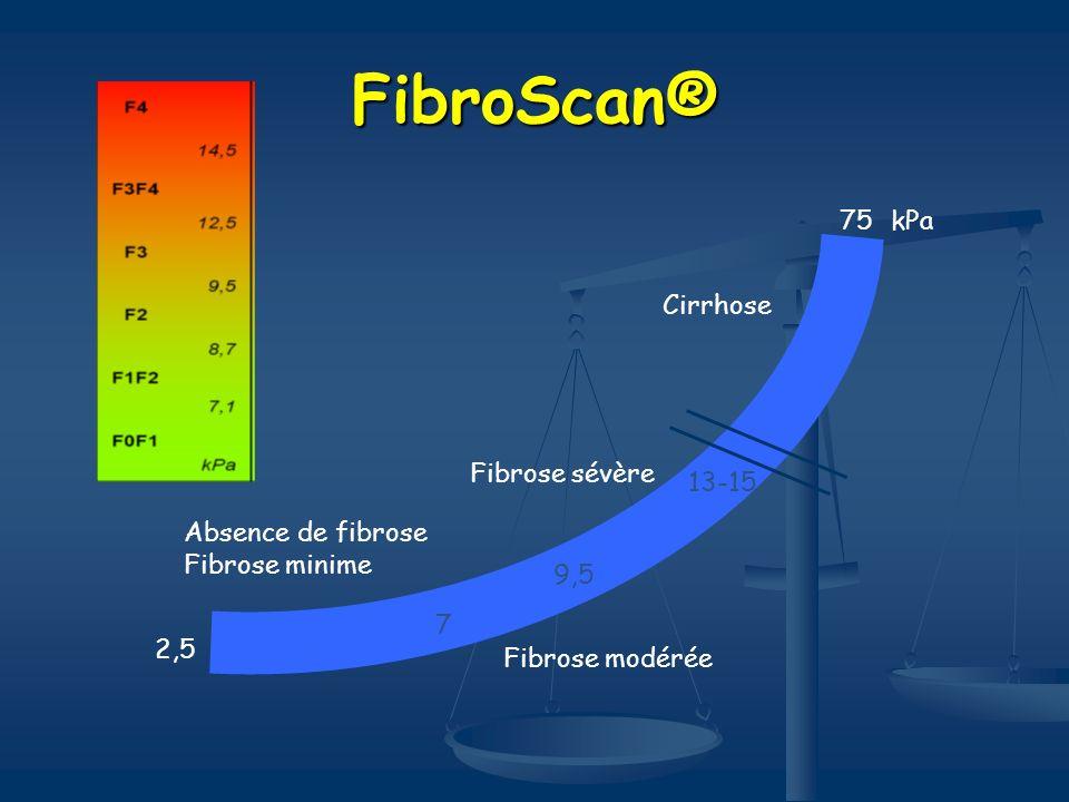 FibroScan® kPa75 7 9,5 13-15 2,5 Cirrhose Fibrose sévère Fibrose modérée Absence de fibrose Fibrose minime