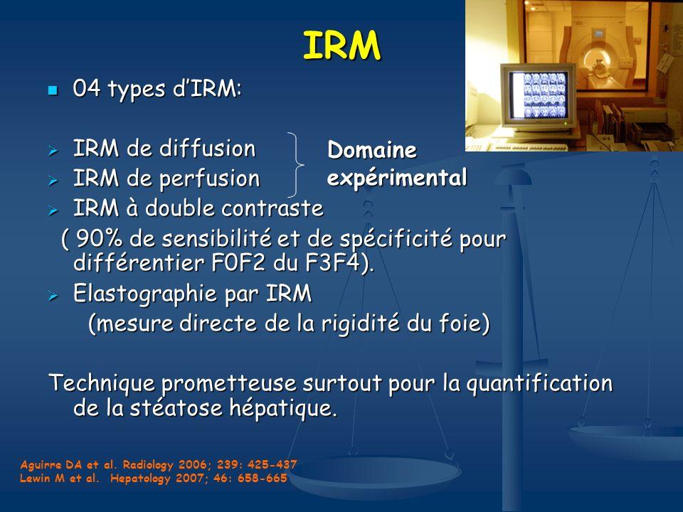 IRM 04 types dIRM: 04 types dIRM: IRM de diffusion IRM de diffusion IRM de perfusion IRM de perfusion IRM à double contraste IRM à double contraste (