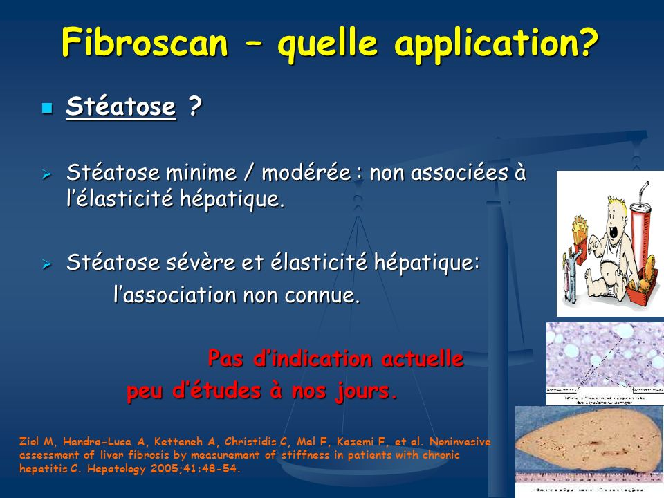Fibroscan – quelle application.Stéatose . Stéatose .