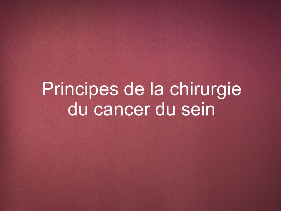 Principes de la chirurgie du cancer du sein