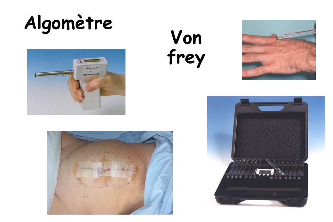 Algomètre Von frey