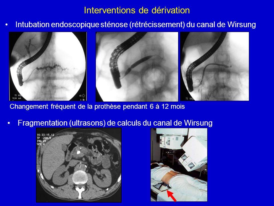 Interventions de dérivation Intubation endoscopique sténose (rétrécissement) du canal de Wirsung Fragmentation (ultrasons) de calculs du canal de Wirs