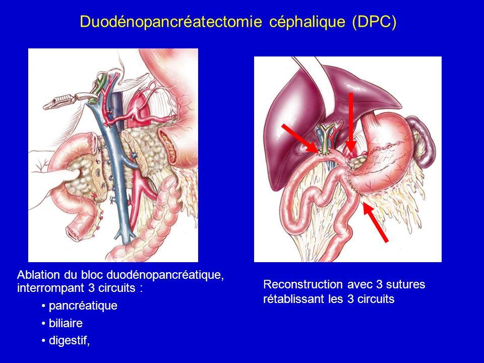 Duodénopancréatectomie céphalique (DPC) Ablation du bloc duodénopancréatique, interrompant 3 circuits : pancréatique biliaire digestif, Reconstruction