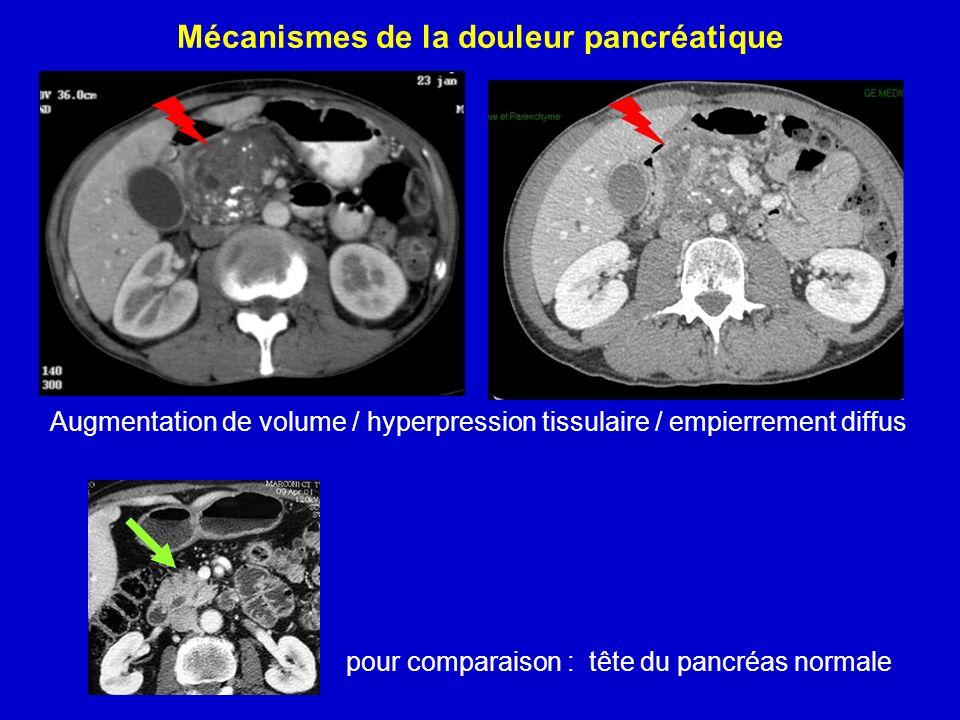 Mécanismes de la douleur pancréatique Augmentation de volume / hyperpression tissulaire / empierrement diffus pour comparaison : tête du pancréas norm