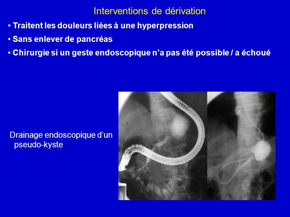 Interventions de dérivation Traitent les douleurs liées à une hyperpression Sans enlever de pancréas Chirurgie si un geste endoscopique na pas été pos