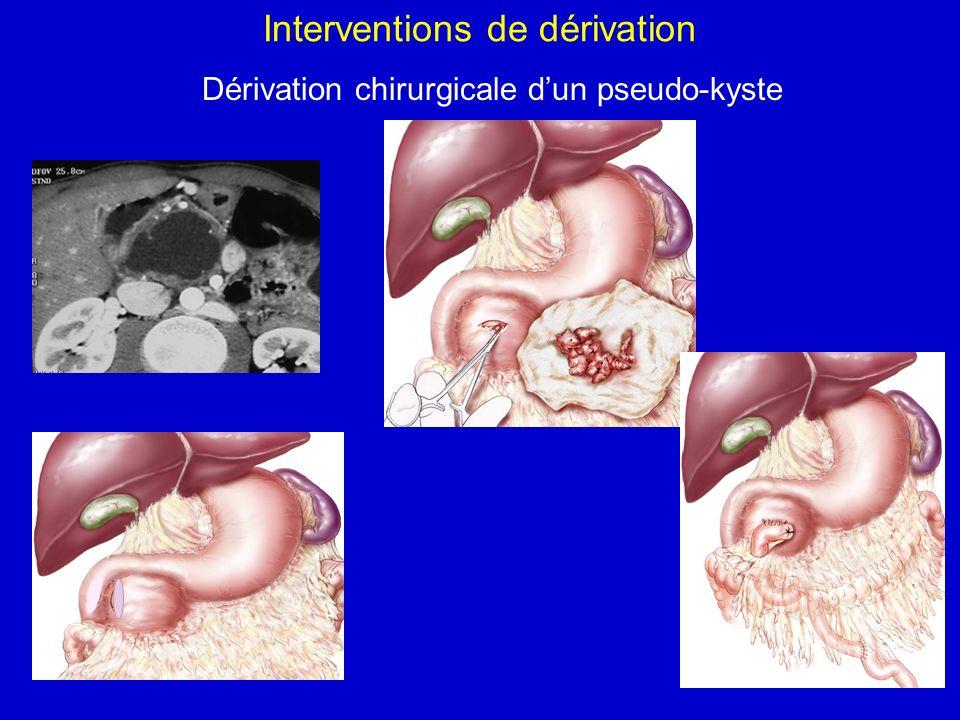 Interventions de dérivation Dérivation chirurgicale dun pseudo-kyste