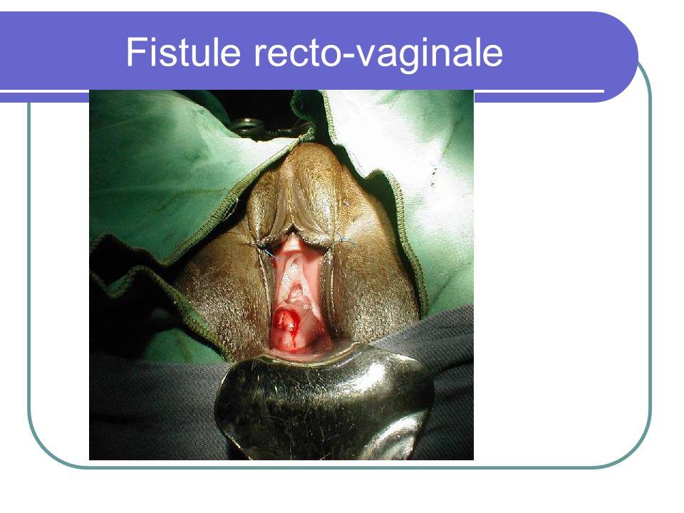 Fistule recto-vaginale