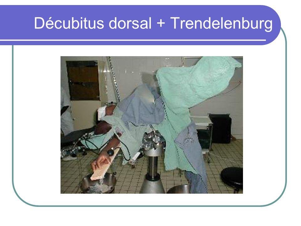 Décubitus dorsal + Trendelenburg