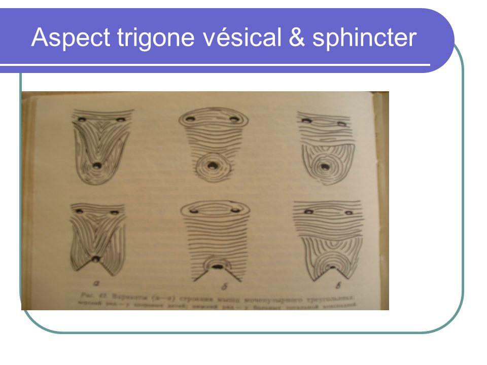 Aspect trigone vésical & sphincter