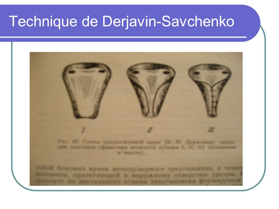 Technique de Derjavin-Savchenko