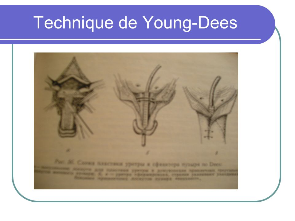 Technique de Young-Dees