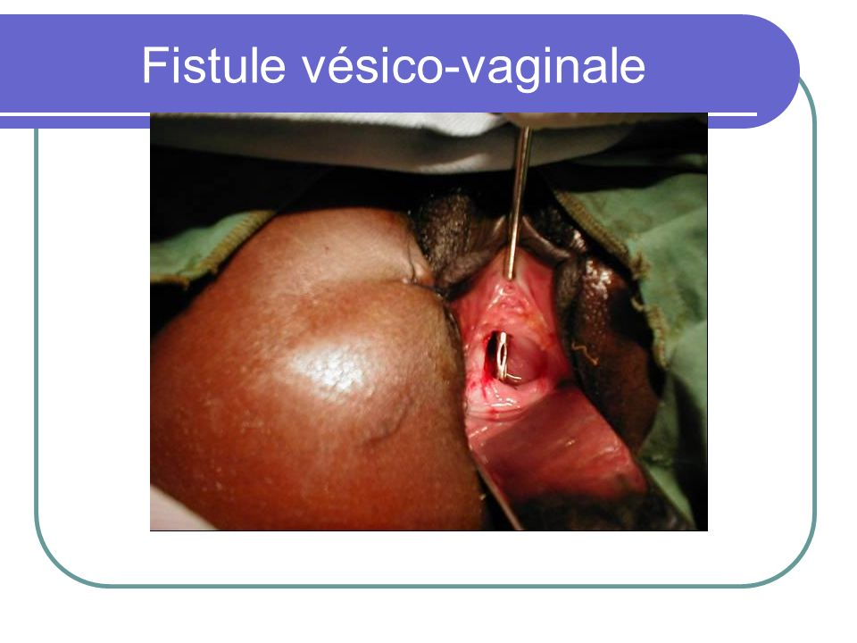 Fistule vésico-vaginale