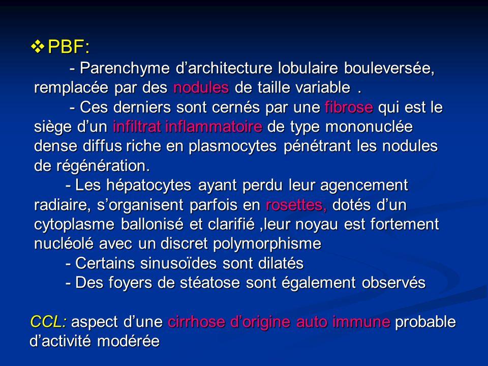 PBF: PBF: - Parenchyme darchitecture lobulaire bouleversée, - Parenchyme darchitecture lobulaire bouleversée, remplacée par des nodules de taille vari