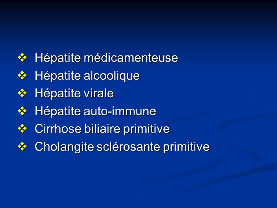 Hépatite médicamenteuse Hépatite médicamenteuse Hépatite alcoolique Hépatite alcoolique Hépatite virale Hépatite virale Hépatite auto-immune Hépatite