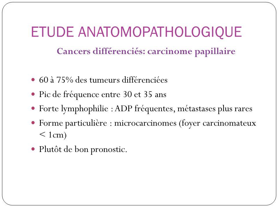 ETUDE ANATOMOPATHOLOGIQUE Cancers différenciés: carcinome papillaire 60 à 75% des tumeurs différenciées Pic de fréquence entre 30 et 35 ans Forte lymp