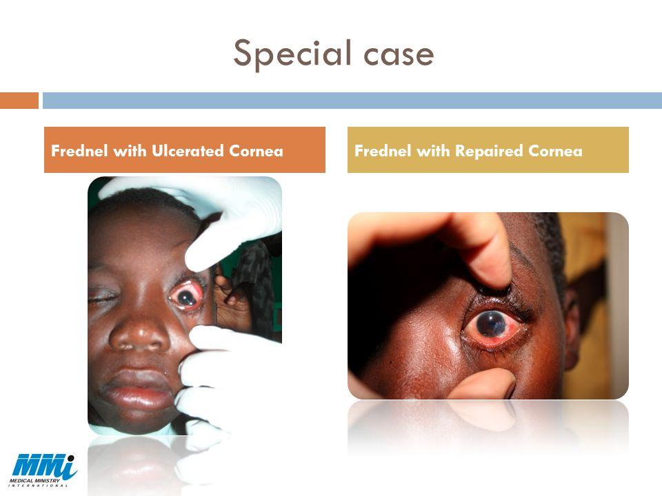 Special case Frednel with Ulcerated Cornea Frednel with Repaired Cornea