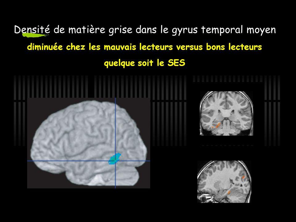 NR>DYS Anomalie de temps de lecture (z-score) Densité de matière grise dans le gyrus temporal moyen diminuée chez les mauvais lecteurs versus bons lecteurs quelque soit le SES