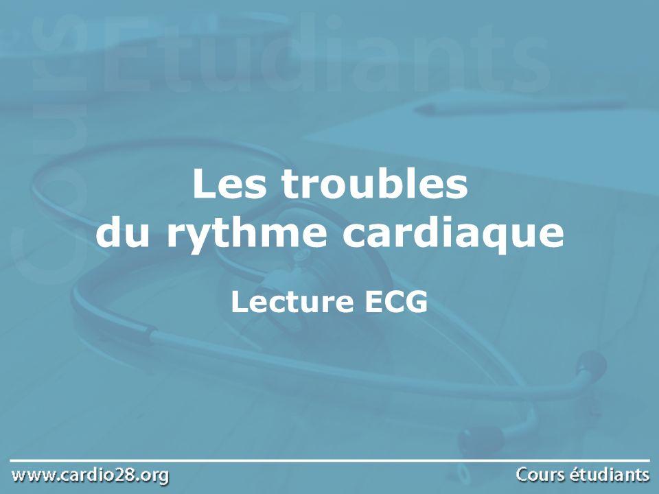 Les Tachycardies Ventriculaires (1) Elles sont déclenchées par un foyer ectopique ventriculaire Tachycardie régulière à complexes larges Etiologies : IDM phase aiguë, anomalie congénitale (dysplasie du VD) Le risque évolutif est la transformation en fibrillation ventriculaire