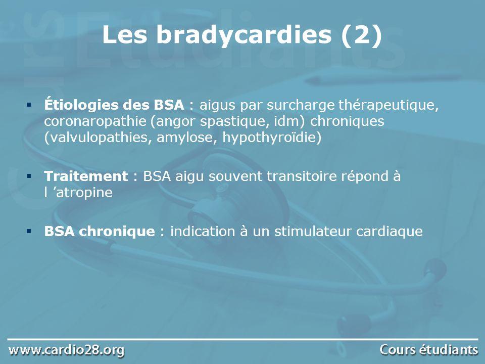 Les bradycardies (2) Étiologies des BSA : aigus par surcharge thérapeutique, coronaropathie (angor spastique, idm) chroniques (valvulopathies, amylose