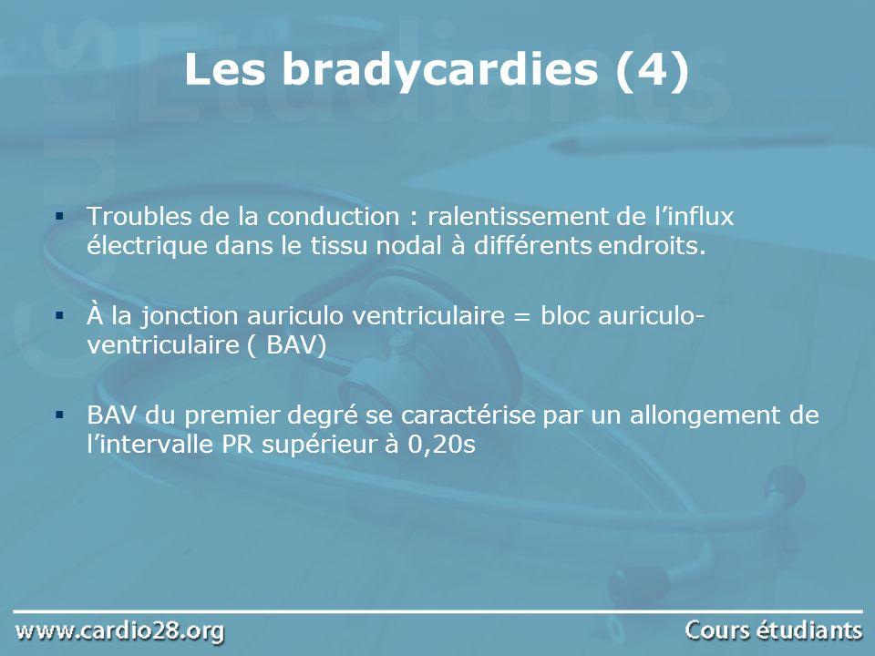 Les bradycardies (4) Troubles de la conduction : ralentissement de linflux électrique dans le tissu nodal à différents endroits. À la jonction auricul