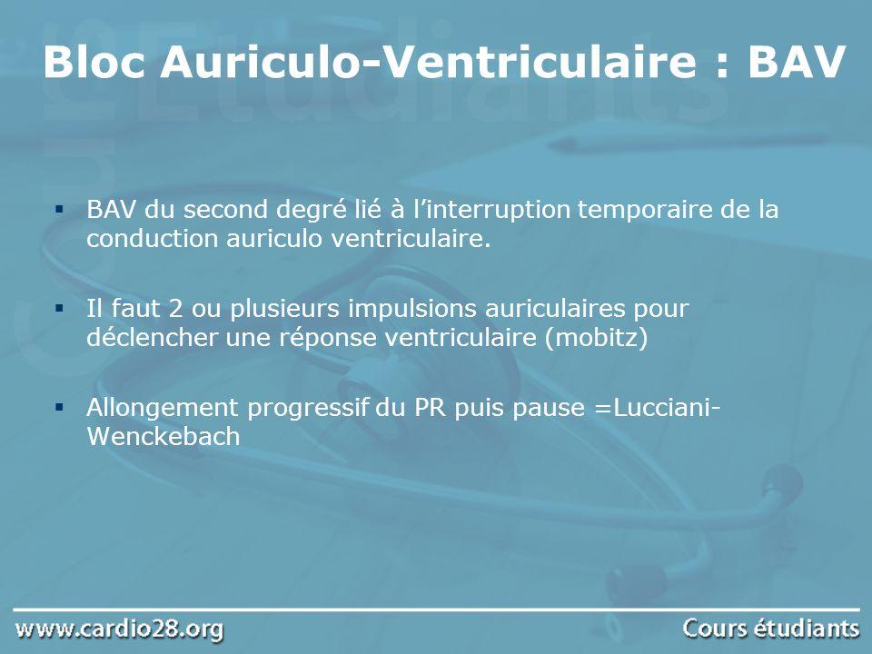 Bloc Auriculo-Ventriculaire : BAV BAV du second degré lié à linterruption temporaire de la conduction auriculo ventriculaire. Il faut 2 ou plusieurs i