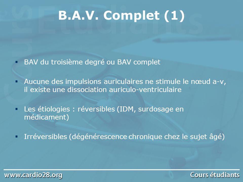B.A.V. Complet (1) BAV du troisième degré ou BAV complet Aucune des impulsions auriculaires ne stimule le nœud a-v, il existe une dissociation auricul