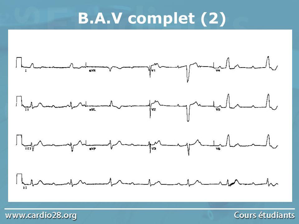 B.A.V complet (2)