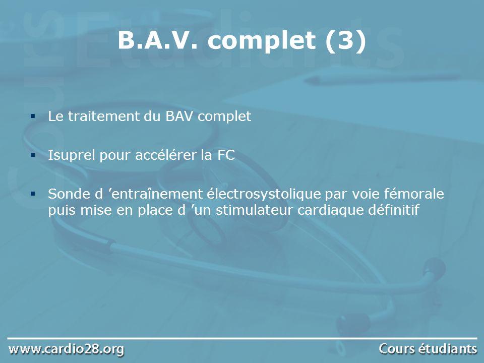 B.A.V. complet (3) Le traitement du BAV complet Isuprel pour accélérer la FC Sonde d entraînement électrosystolique par voie fémorale puis mise en pla