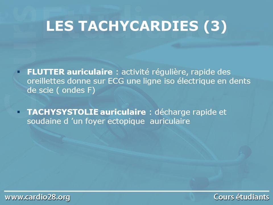 LES TACHYCARDIES (3) FLUTTER auriculaire : activité régulière, rapide des oreillettes donne sur ECG une ligne iso électrique en dents de scie ( ondes