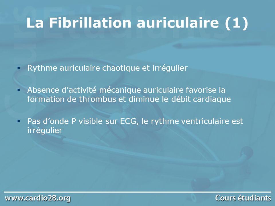 La Fibrillation auriculaire (1) Rythme auriculaire chaotique et irrégulier Absence dactivité mécanique auriculaire favorise la formation de thrombus e