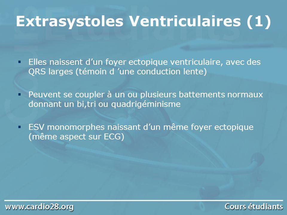 Extrasystoles Ventriculaires (1) Elles naissent dun foyer ectopique ventriculaire, avec des QRS larges (témoin d une conduction lente) Peuvent se coup