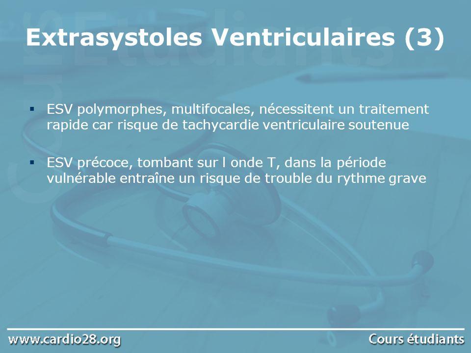 Extrasystoles Ventriculaires (3) ESV polymorphes, multifocales, nécessitent un traitement rapide car risque de tachycardie ventriculaire soutenue ESV
