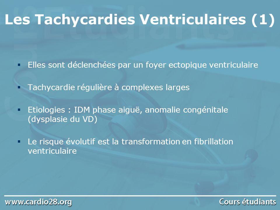 Les Tachycardies Ventriculaires (1) Elles sont déclenchées par un foyer ectopique ventriculaire Tachycardie régulière à complexes larges Etiologies :
