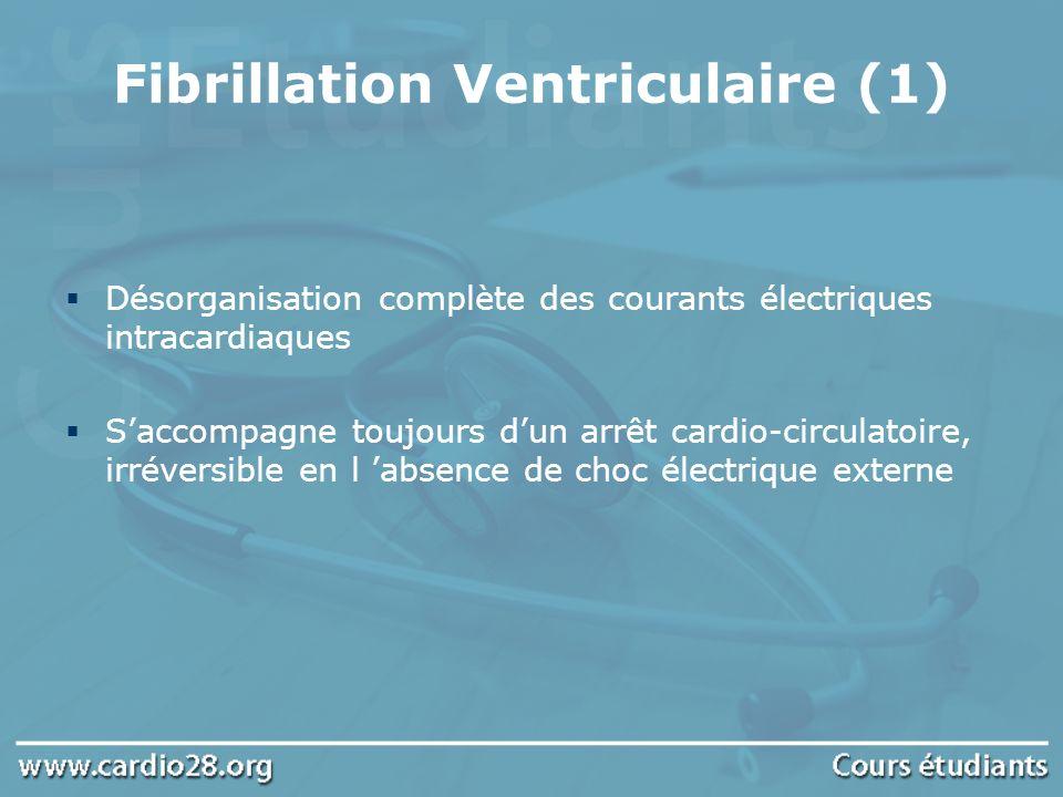 Fibrillation Ventriculaire (1) Désorganisation complète des courants électriques intracardiaques Saccompagne toujours dun arrêt cardio-circulatoire, i