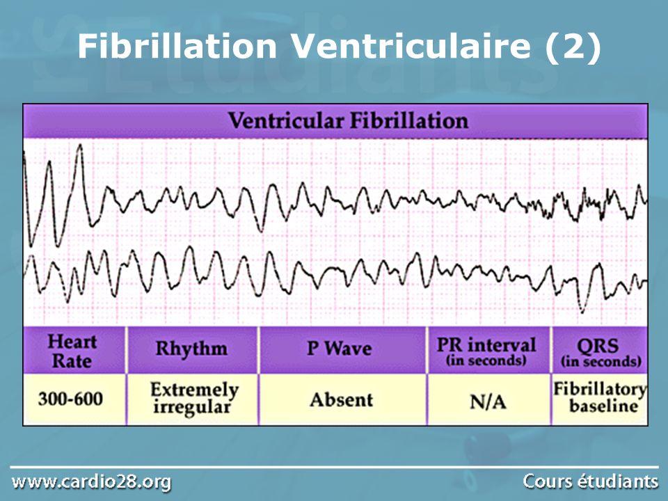 Fibrillation Ventriculaire (2)