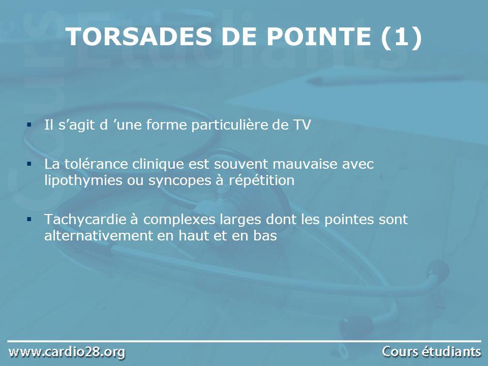 TORSADES DE POINTE (1) Il sagit d une forme particulière de TV La tolérance clinique est souvent mauvaise avec lipothymies ou syncopes à répétition Ta