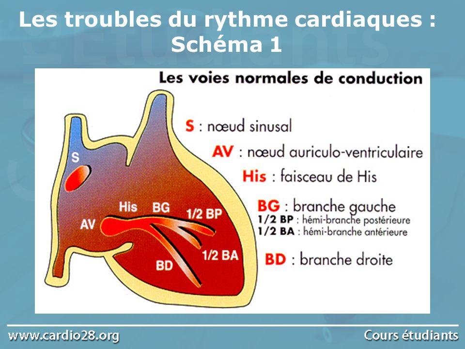 Les troubles du rythme cardiaques : Schéma 2