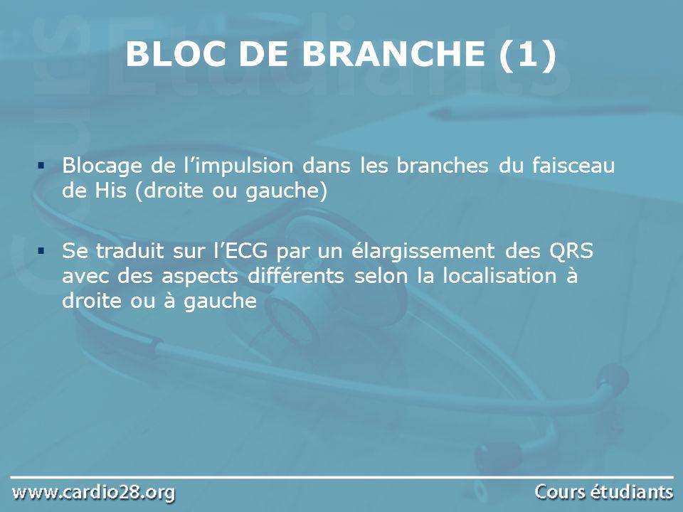 BLOC DE BRANCHE (1) Blocage de limpulsion dans les branches du faisceau de His (droite ou gauche) Se traduit sur lECG par un élargissement des QRS ave